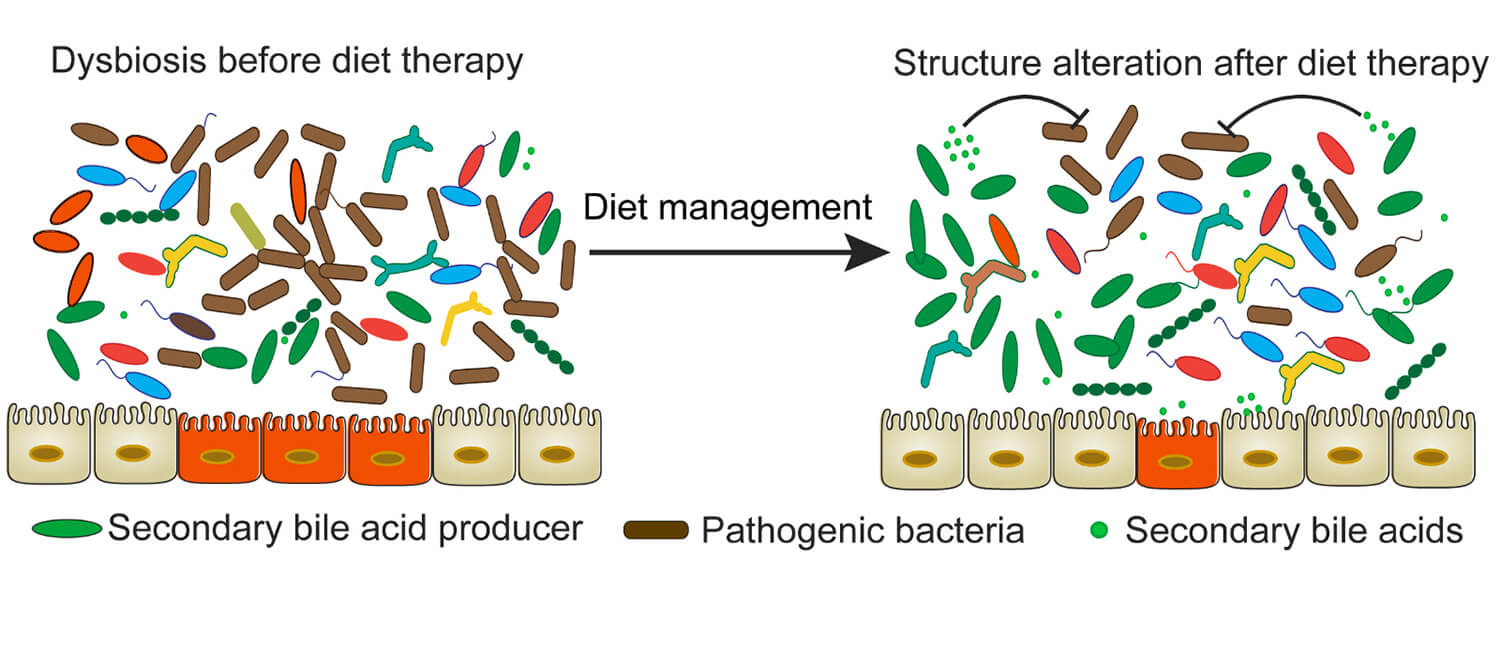 The Diet-Microbiome Connection in IBD