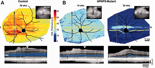 "Dogs with a mutation in NPHP5 showed photoreceptor degeneration, though a ""streak"" of cones was retained."