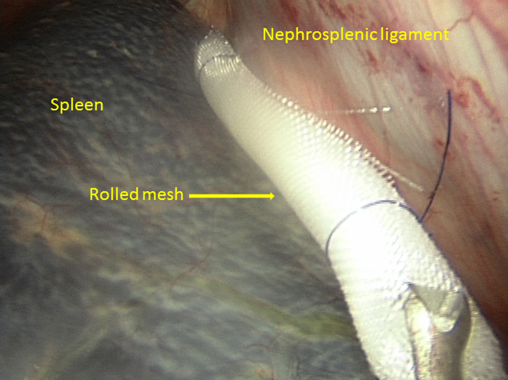During the procedure, mesh is placed in the nephrosplenic space to induce fibrosis, which leads to collapse of the space, preventing future entrapment.