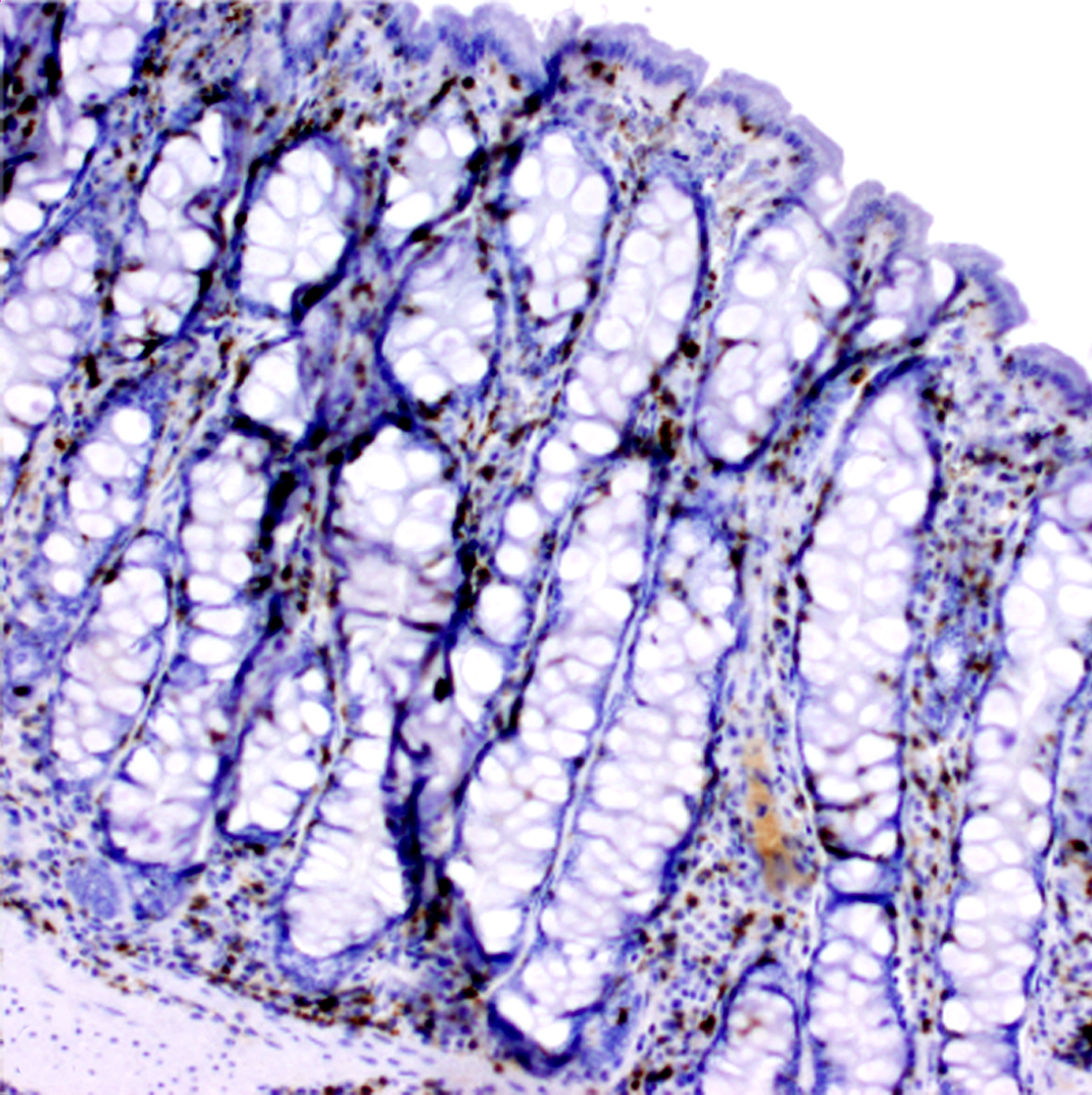 Immunohistochemistry (special stains of tissues) can highlight specific inflammatory cells. Mucosa of the normal horse.
