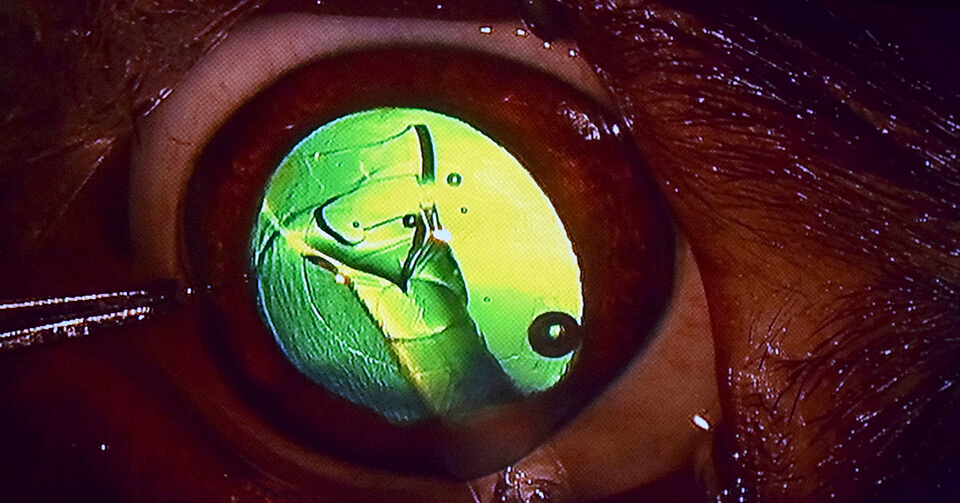 The artificial lens unfolds inside Tucker's eye as it leaves the hypodermic.
