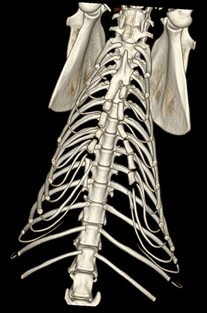 A CT scan of Athena's ribcage shows the unfused sternum