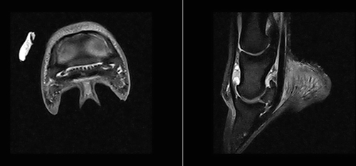 MRI images of Lexi's right front hoof