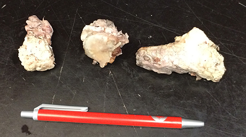 Three bone fragments – with a pen for scale – removed from Mandola's shoulder. Joe Clancy photo