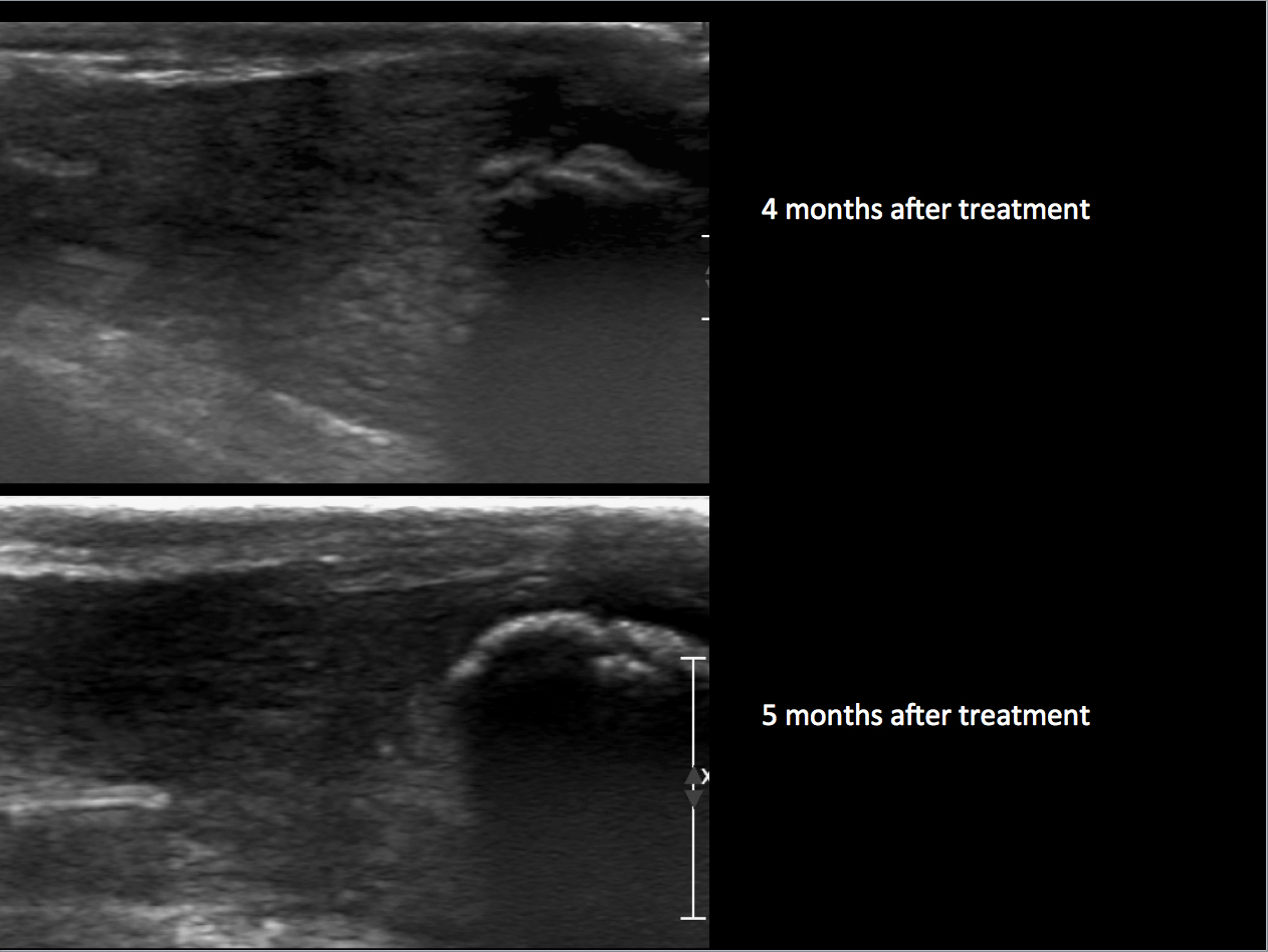 Radiologic image of Maxine's healed calcaneal tendon 4 and 5 months after treatment.