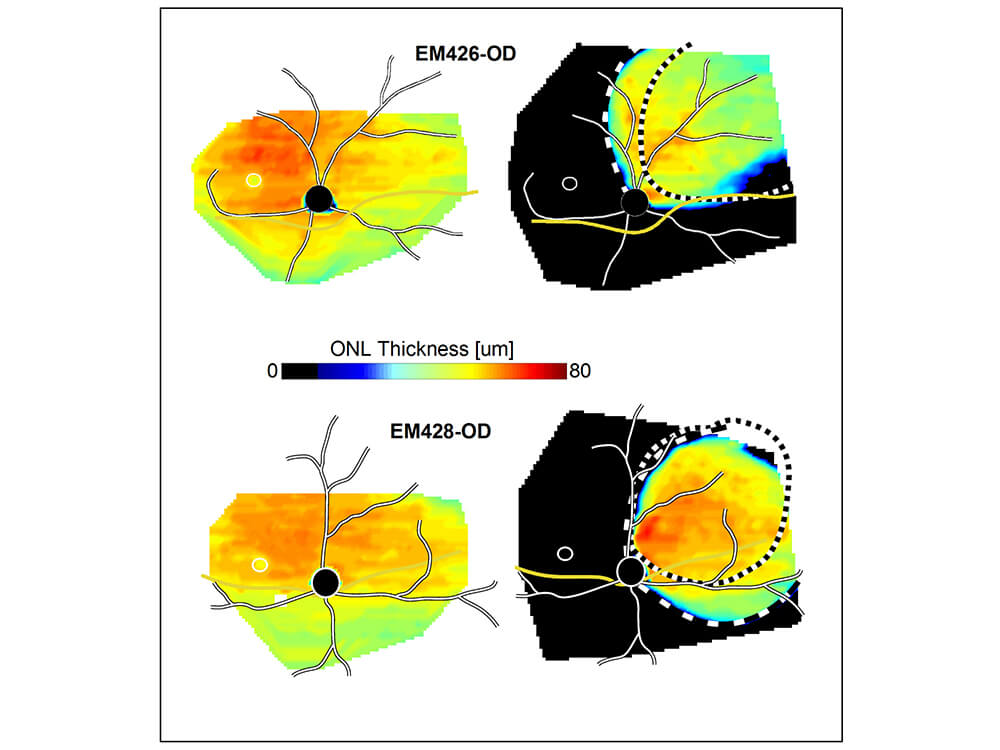 Maps reflecting the thickness of a key layer of the retina show how a gene therapy treatment (right panels) protected against several retinal degeneration.