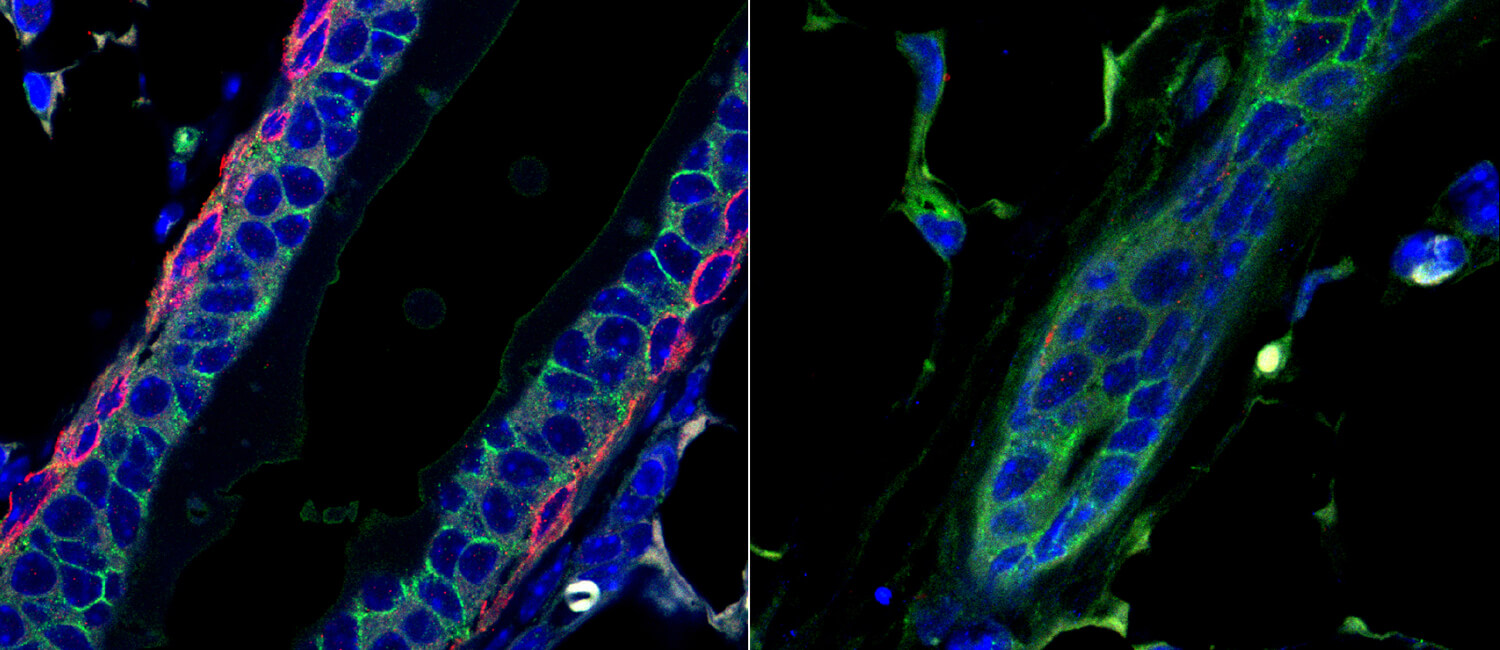Led by Penn Vet scientists, a new study reveals that the protein deltaNp63, which fosters the initiation and progression of triple-negative breast cancer, also helps fuel mammary gland development during puberty in mice. Without it (right panel), the mammary duct had altered structure.