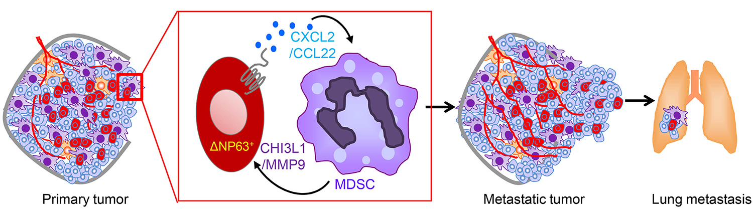 Immune cells called myeloid-derived immunosuppressor cells (MDSCs) play a key role in the progression and aggressiveness of triple-negative breast cancers. Blocking them could offer a therapeutic target in the disease, which notoriously resists many standard treatments.