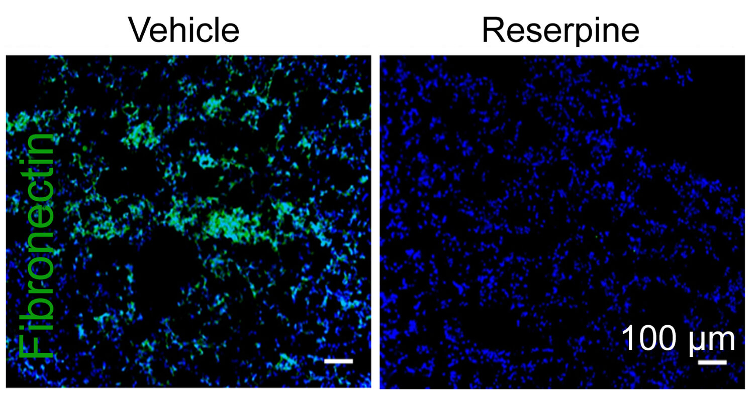 In a mouse model, the FDA-approved drug reserpine seemed to hamper the ability of tumors to reshape distant tissues in ways that would encourage metastasis, for example, reducing the accumulation of fibronectin, a protein associated with certain types of cancer.