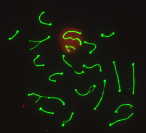 Pachytene spermatocyte with synapsed chromosomes