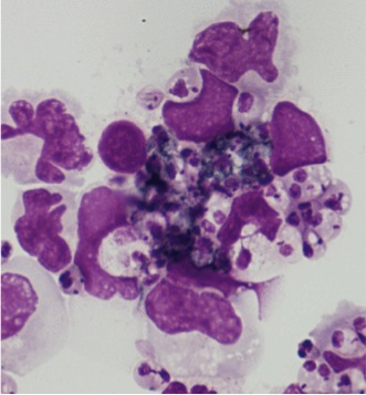 Human Monocytes infected with anastigotes