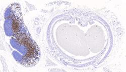 CD8α IHCp