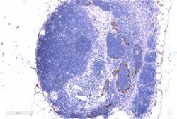 Lyve1, AngioBio, Catalog #11-034, Rb mAb (IHCp)