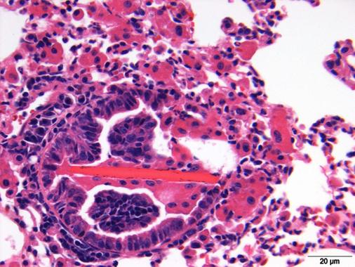 Eosinophilic crystalline pneumonia, Penn Vet