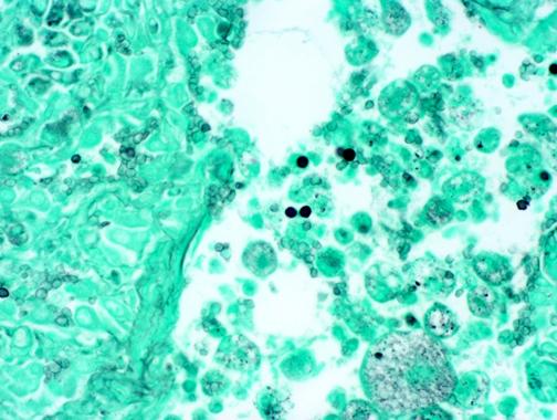 Penn Vet Comparative Pathology, GMS stain