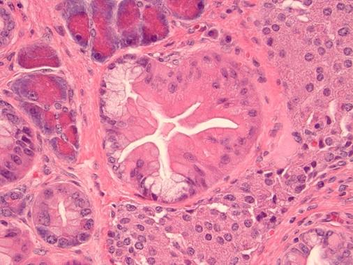 Mouse Model of Pancreatic Intraepithelial Neoplasia (PanIN)