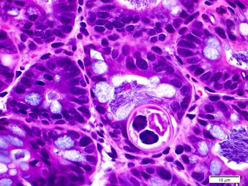 Inflammatory & Infectious Disease Models, intestinal