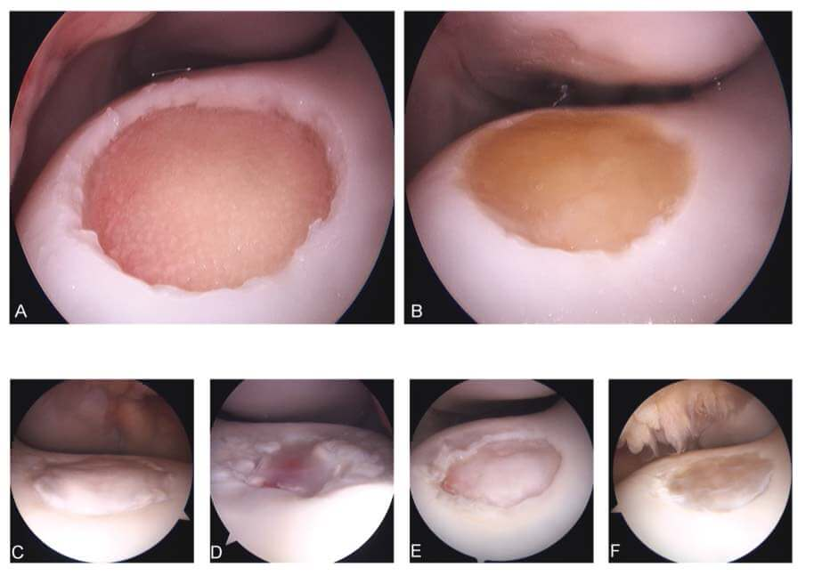 Arthroscopic images of empty (a), implanted (b) and healing defects 8 weeks postimplantation (c-f)