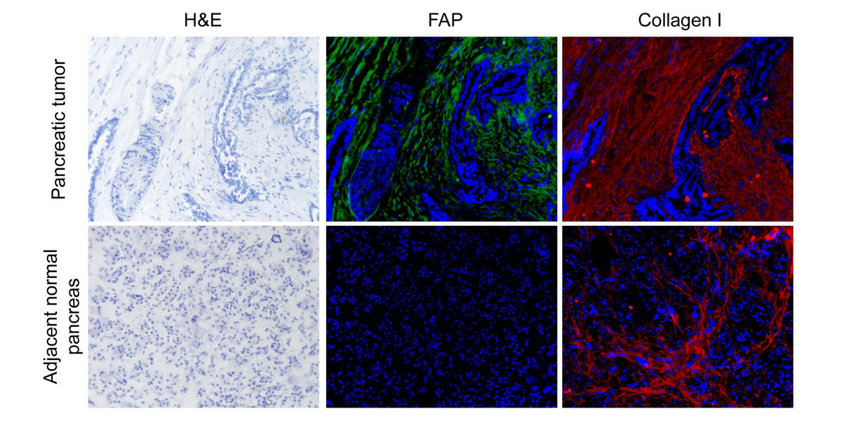 Researchers showed that FAP (middle panels) is overexpressed in pancreatic tumors compared to normal pancreatic tissue. Particularly high levels of FAP expression were associated with poorer outcomes.