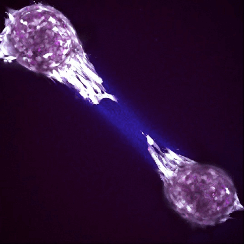 migrating breast cancer cells