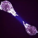 migrating breast cancer cells