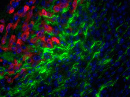 Matrix-Degrading Enzyme Activity Facilitates Cancer Metastasis