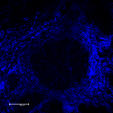 Collagen in the Canine Mammary Tumor Microenvironment